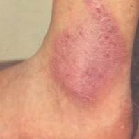 Ограниченный зудящий дерматит