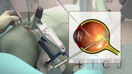 В Британии робот впервые осуществил операции на глазу