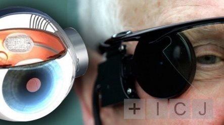 В Британии впервые провели пересадку бионического глаза