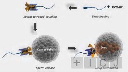 Ученые из Германии предложили лечить рак у женщин сперматозоидами