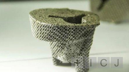 В Китае впервые провели 3D протезирование сустава