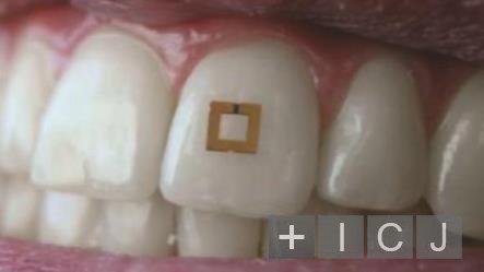 Ученые создали наклейку для зубов, которая будет следить за здоровьем